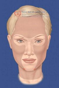 пластика носапластика лица